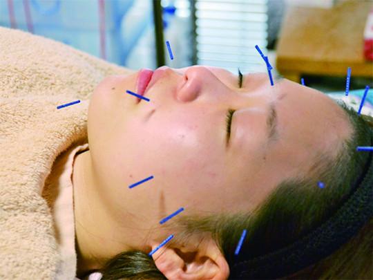 美容鍼灸 5,500円